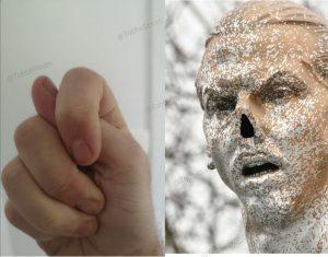 Zlatans näsa borta